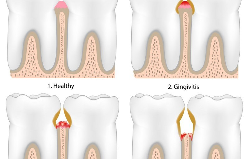 Are you neglecting your teeth and gums?